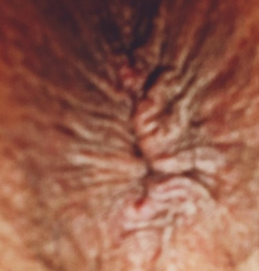 Anus wrinkles acute acupuncture swollen anus What's the effect